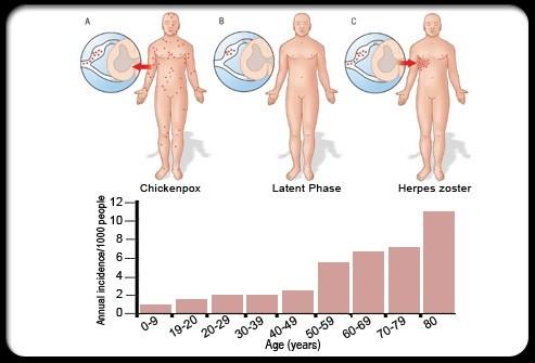 帯状疱疹の患者数