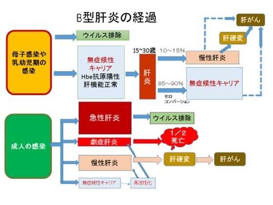 B型肝炎の経過